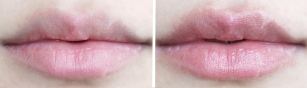 niod-lip-bio-lipid-plumper-before-after